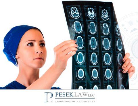 ¿Cómo detectar una lesión cerebral después de haber sufrido un accidente?